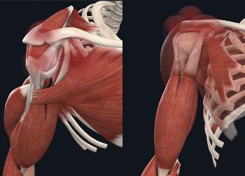 Causes des douleurs à l'épaule