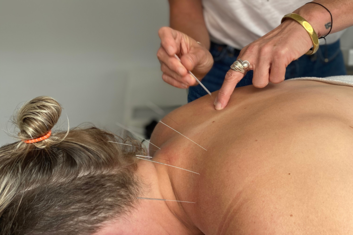 Acupuncture in Montreal