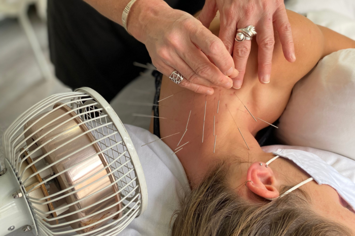 Acupuncture clinic in Montreal