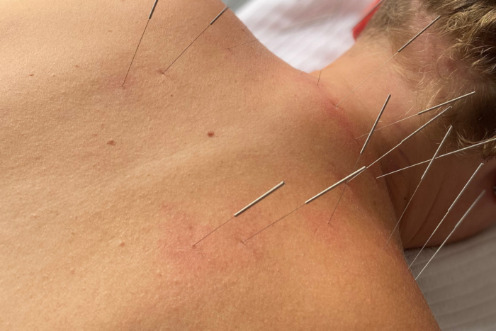 Acupuncture treatment in Montreal